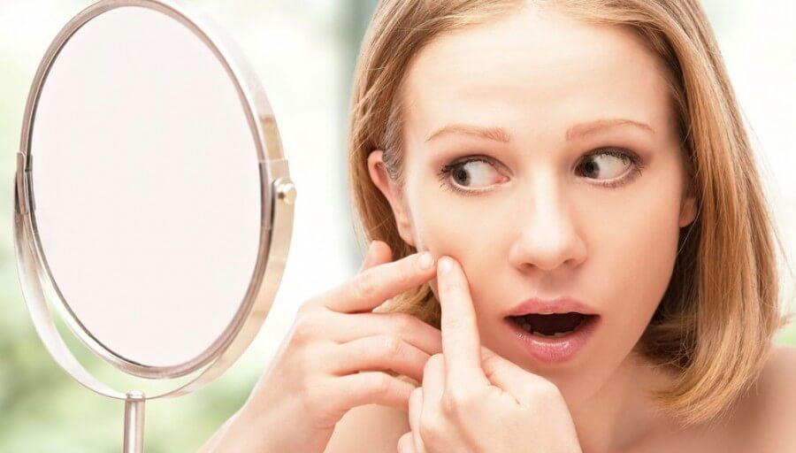 Hút mụn đầu đen dễ để lại sẹo thâm và sẹo rỗ
