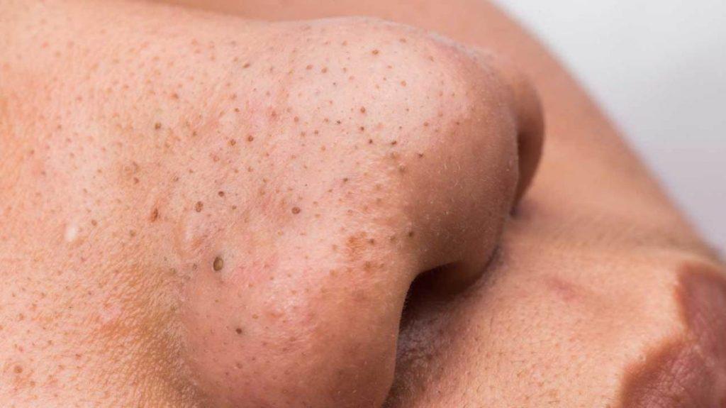 Các tế bào chết và sự hoạt động của các vi khuẩn sẽ gây ra mụn đầu đen