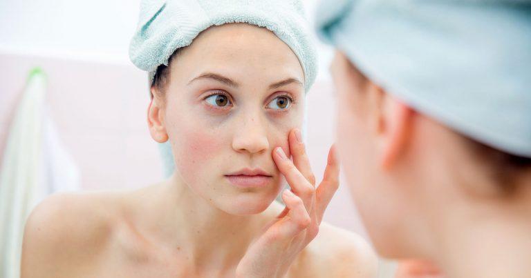 Có nên nặn mụn đầu đen trên da mặt không?