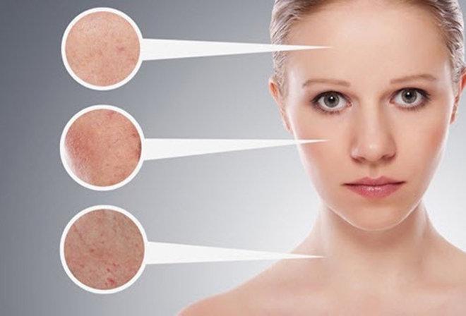 Chế độ ăn uống có ảnh hưởng rất lớn đến quá trình tái tạo da sau nặn mụn đầu đen