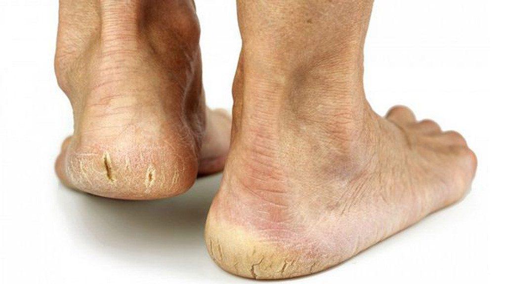cách trị nứt gót chân tự nhiên