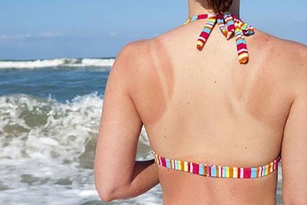 cách chữa da bị cháy nắng lâu ngày