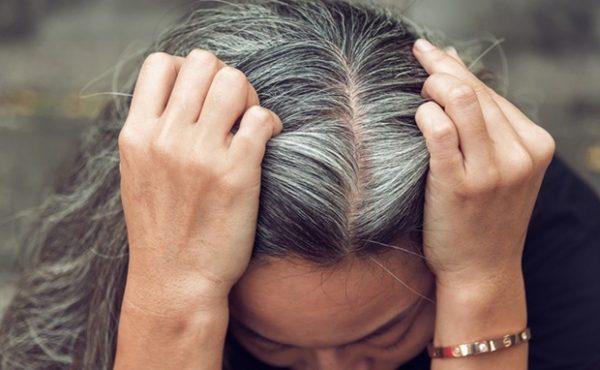thuốc chữa tóc bạc sớm hiệu quả nhất