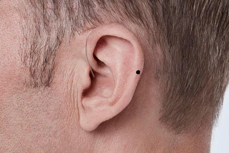 Nốt ruồi sau tai