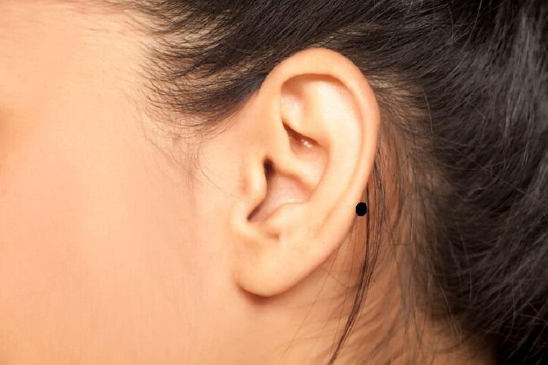 Nốt ruồi sau tai trái
